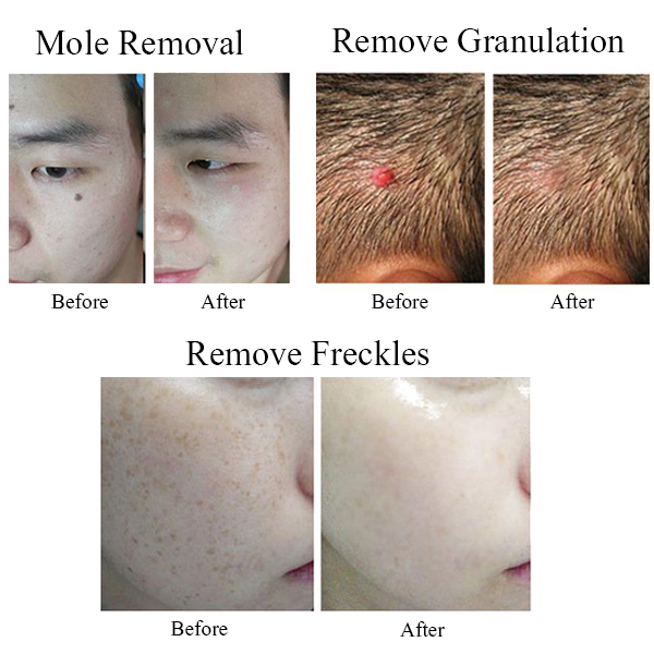 Facial Black Spot Extractor Tools Rechargeable Freckle Laser Spot Laser  Beauty Mole Removal Machine Tool