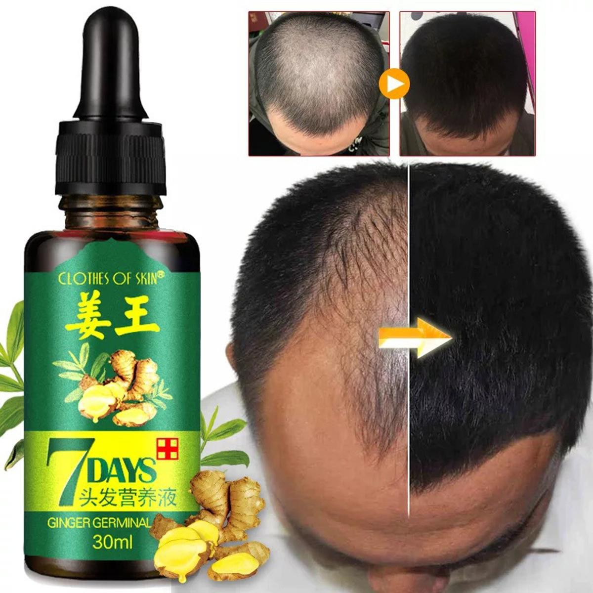 Essential для роста волос Масло Loss Natural Ginger Senz Regrowth Serum US