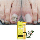 OEDO Nail Repair Treatments Cream Anti Remove Nail Onychomycosis Paronychia Promote Nail Growth Foot Cream Brighten Nail