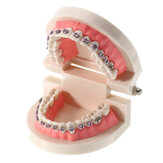 Dental Teeth Malocclusion Orthodontic Model With Full Metal Brackets Hoops Dentist Teaching