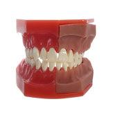Dentale Strumenti Medico Modello del modello di sostituzione del dente deciduo modello Dentale