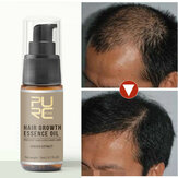 Hair Growth Treatment Hair Loss Spray Essential Oil